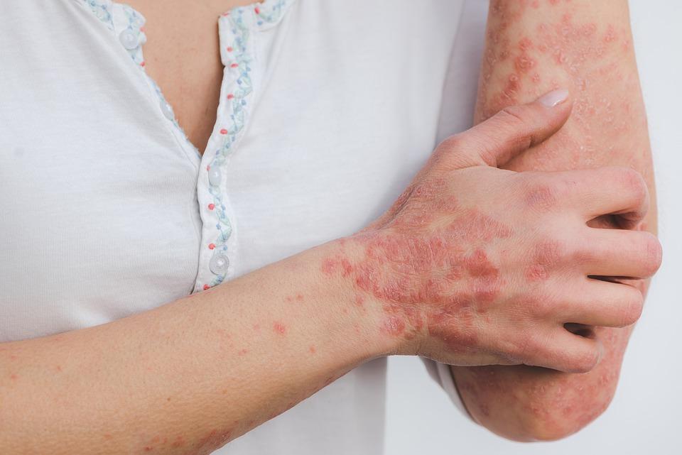 Brug af CBD-olie til behandling af autoimmune sygdomme